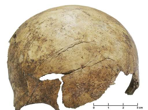Scientists find evidence of prehistoric massacre in Europe