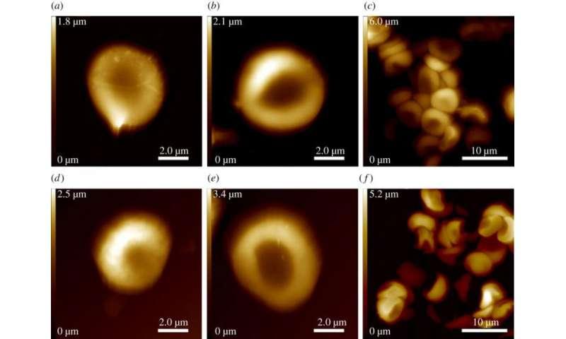 冰人奥茨身上的新发现——最古老的红血球样本 New study of Iceman reveals oldest known example of red blood cells