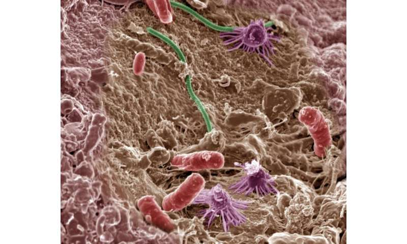 Microbes may not be so adaptable to climate change