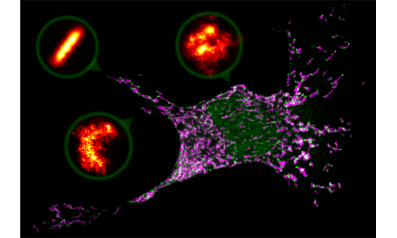 Ring- and arc-shaped pores drive stressed cells to a programmed death