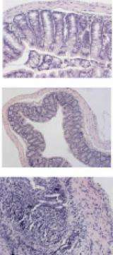 Researchers develop oral delivery system to treat inflammatory bowel diseases