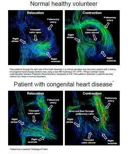 Remarkable new images show a 4-D view of the heart