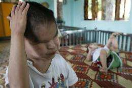 $300 mln to cope with Agent Orange in Vietnam (AP)