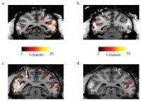 Scientists find explanation for blindsight