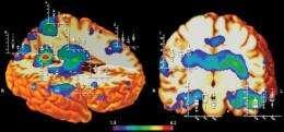 Brain abnormalities identified that result from prenatal meth exposure