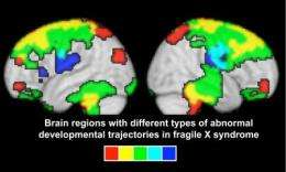 Brain changes associated with Fragile X take place before age 2