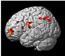 Brain Study: Sensitive Persons' Perception Moderates Responses Based On Culture
