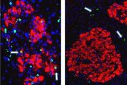 Insulin-creating cell research may lead to better diabetes treatment