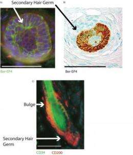 Male pattern balding may be due to stem cell inactivation, according to Penn study