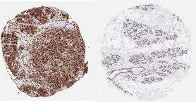Newly Discovered Protein Function Linked to Breast Cancer