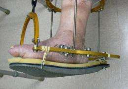 New treatment for crippling diabetic Charcot foot