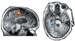 Patient presumed vegetative communicates via brain scan: study