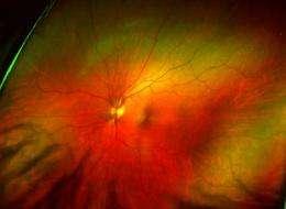 Retina implants: location is key