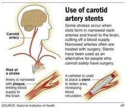 Stroke study finds neck stents safe, effective