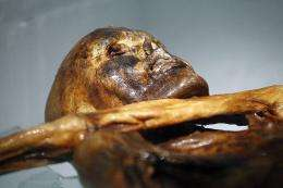 The mummy of an iceman named Otzi