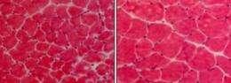 TWEAK triggers atrophy of disused muscle