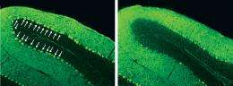 Unearthing a pathway to brain damage