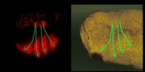 Key to how cells, including cancer, migrate and invade the body discovered