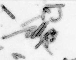 Marburg virus