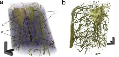 New computer-tomography method visualizes nano-structure of bones