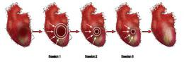 Non-Invasive Technology Evaluated to Treat Cardiac Chest Pain