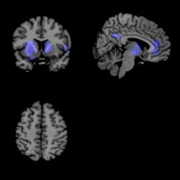 Brain imaging technique: New hope for understanding Parkinson's disease