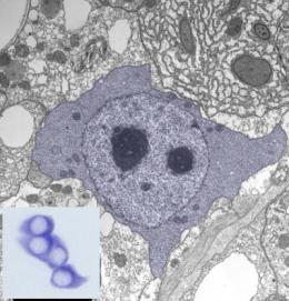 Cancer: 'Primitive' gene discovered