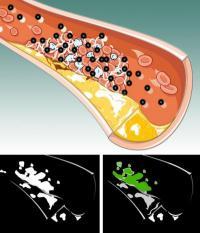 New nanoparticles make blood clots visible
