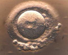 Study identifies a protein complex possibly crucial for triggering embryo development