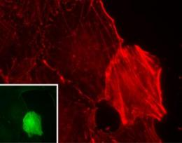 Tumor suppressor APC could stop cancer through its effect on actin cytoskeleton