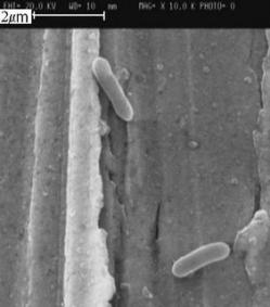 The protector: electron microscope image of MR-1 bacteria.