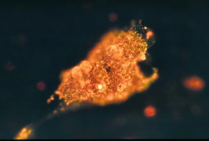 Image of cancer cell illuminated by gold nanorods bound to anti-EFGR.