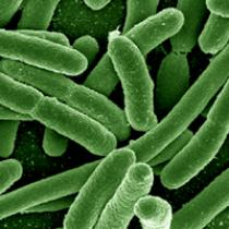 Probing Question: Why are some strains of E. coli resistant to antibiotics?
