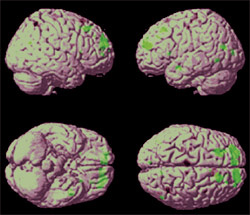 Researchers identify brain network that may help prevent or slow Alzheimer's