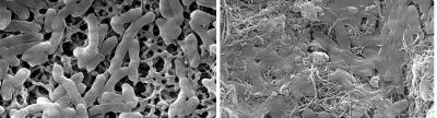 Effect of Nanotubes on E. coli