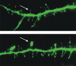 Hairstyle of a Neuron: From Hairy to Mushroom-Head