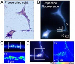 Scientists spot sneaky 'neurodegenerative' iron at the European synchrotron