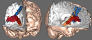 Renderings of the Brain's 'Braking' Network