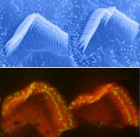 Stereocilia On Top of Auditory Hair Cells