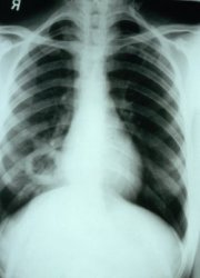 Trials begin for 'essential' new TB vaccine