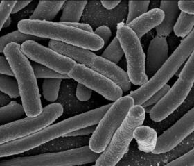 First evidence that bacteria get 'touchy-feely' about dangerous biofilms
