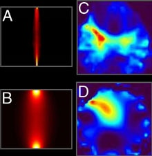 Researcher Finds Early Photon Imaging Detects Lung Cancer