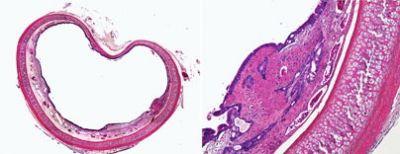 Researchers find novel way to repair airway injuries
