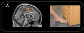 Accidental Pain Prompts Brain Response