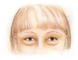 Baggy Eyelids