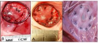 Beating-Heart Repair of Atrial Septal Defects