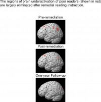 Brain Underactivation