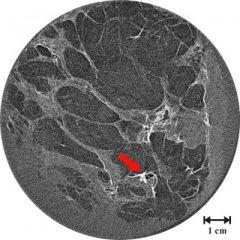 Breast Image Using New ABI Technique