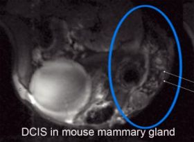 DCIS in Mouse Mammary Gland