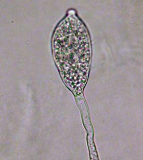 Sporangium of Phytophthora Infestans